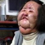 韓国の扇風機おばさんが死亡した原因は?韓国整形美人の現実と整形の後遺症!